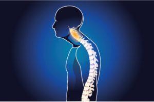 spinal disorder illustration