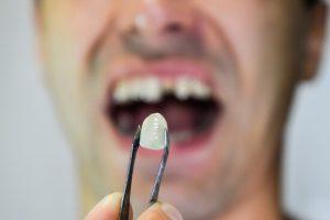 bone loss due to missing teeth