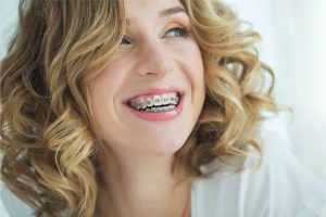 What Do You Need To Know About  6 Months Braces?