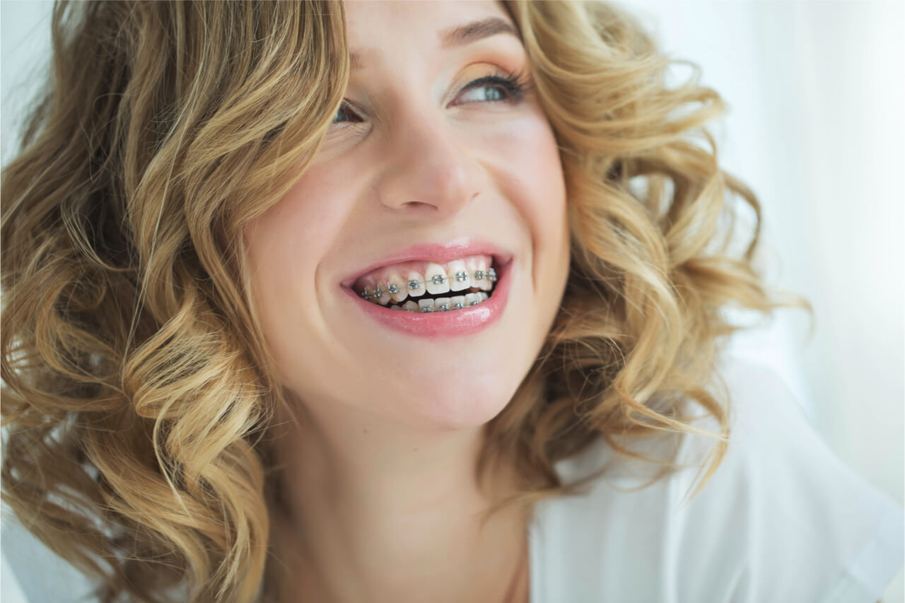 The 6 months of braces help the patient to achieve her desired smile.